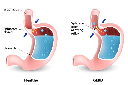 GERD – Causes, Symptoms, And Treatment