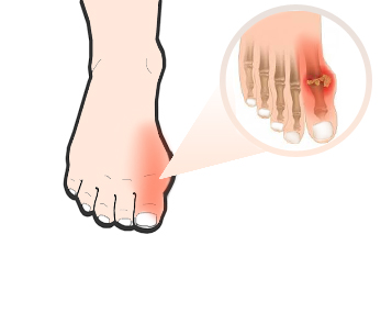 gout-and-homeopathy