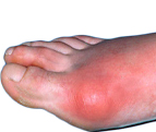 What Is The Best Diet For Gout Treatment?