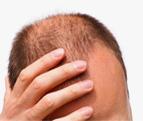 hair-fall-ico