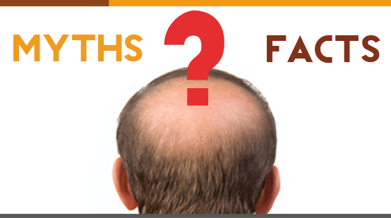 Hair Loss Myths and Facts