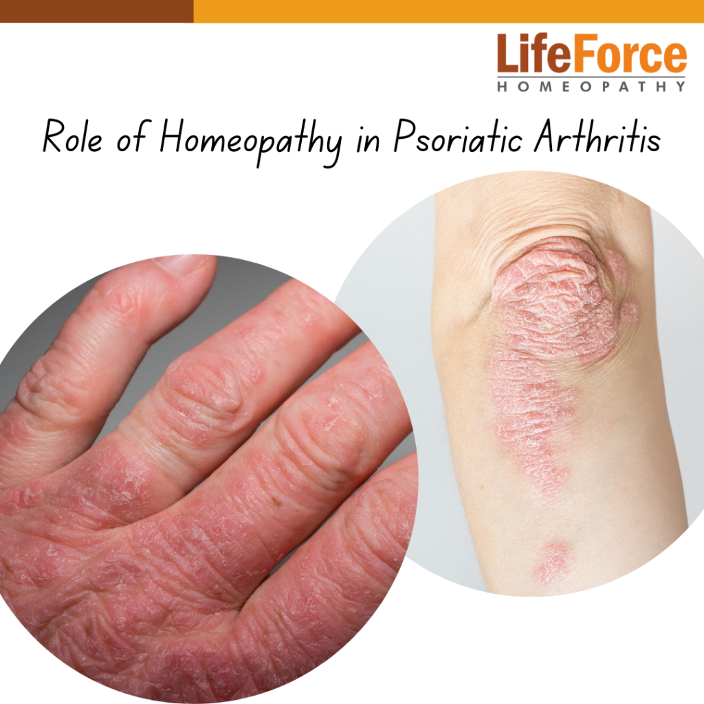 Homeopathic Treatment Approach For Psoriatic Arthritis – How Can It Help?