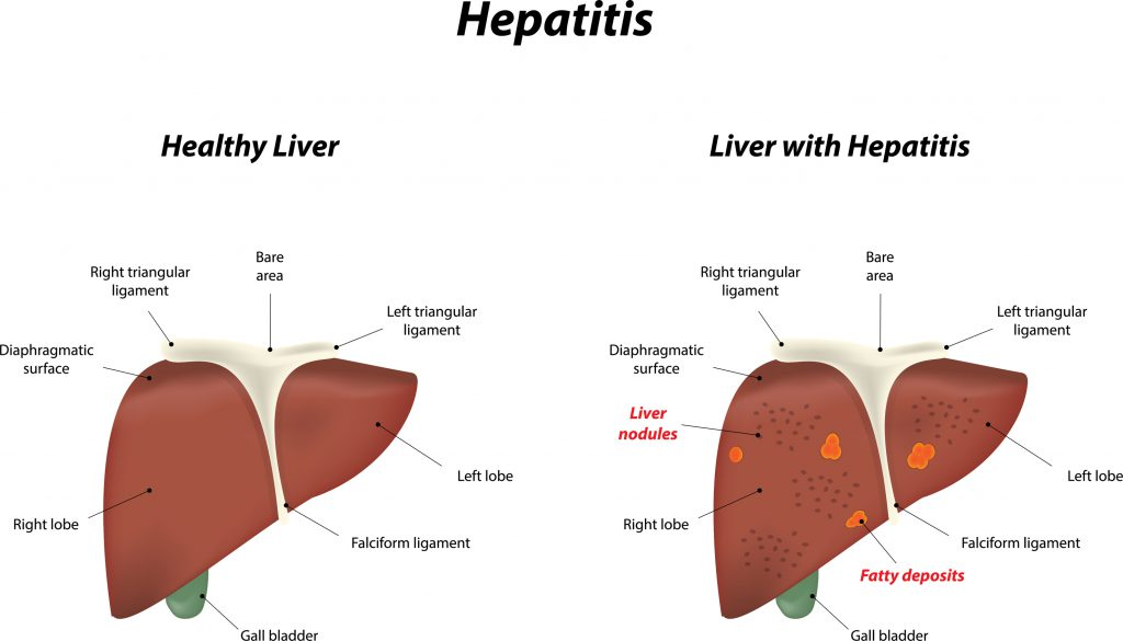 Hepatitis And Its Adverse Effects You Should Be Aware Of