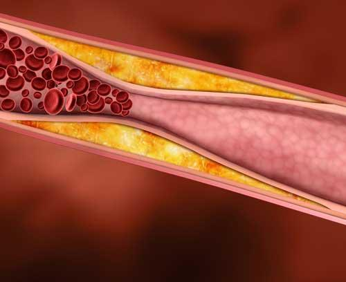 Cholesterol…Is It Really That Bad?