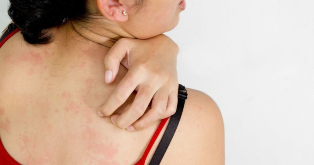 Are Hives (Urticaria) Contagious?