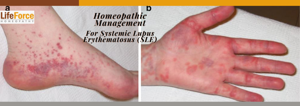 Homeopathic Management For Systemic Lupus Erythematosus (SLE)