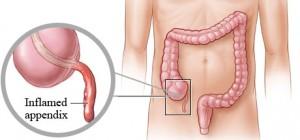 inflamed_appendix