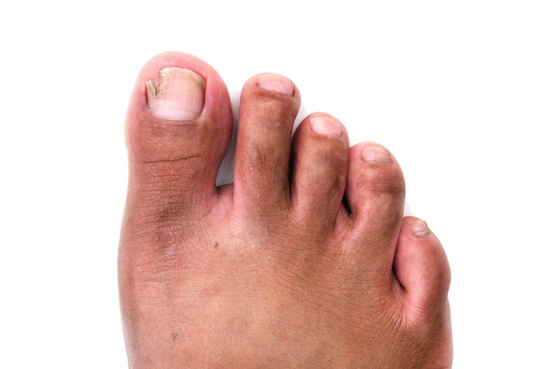 How to prevent ingrown toenail