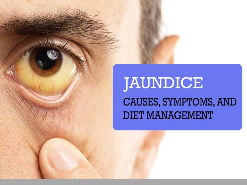 Jaundice – Causes, Symptoms, and Diet Management
