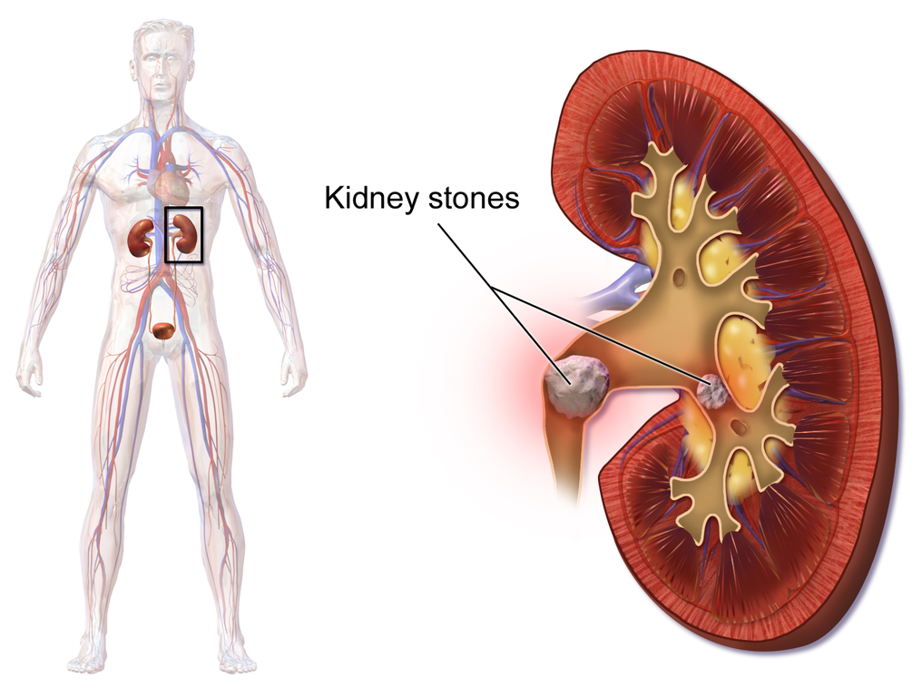 Renal Calculi: Diet Precautions and Treatment