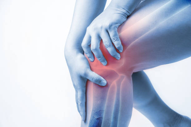 Osteoarthritis: Rebuild, Repair, And Restore Your Joint With Homeopathy