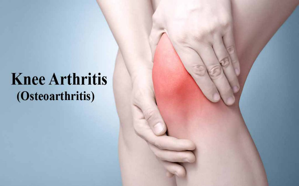 Get To Know About Osteoarthritis And How Homeopathy Can Help