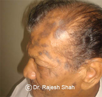 Lichen Planus affecting the scalp