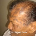 lichen-planus-affecting-scalp1