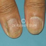 lichen-planus-nails_(1)