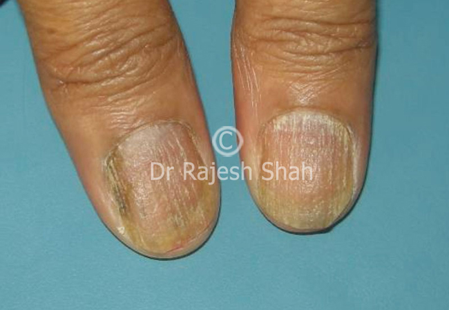 Nail Psoriasis vs Fungus – How to differentiate between the two?