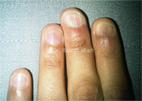Long term treatment of nail Lichen Planus