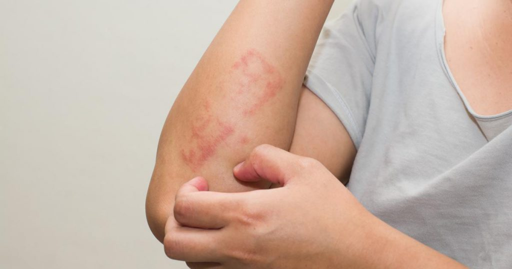 Lichen Planus: The Causes, Symptoms, and Treatment