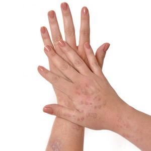 lichen planus hand