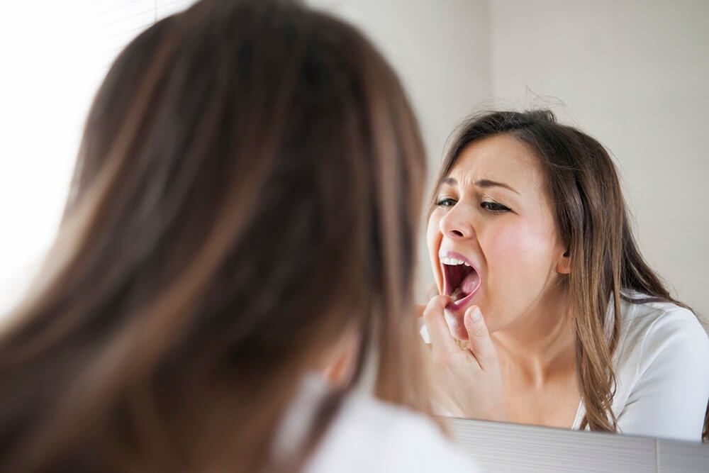 15 Tips For Successfully Managing & Living with Chronic Oral Lichen Planus