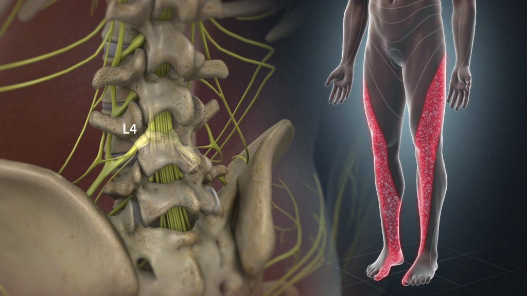 How Homeopathy Can Treat The Discomforting Lumbar Radiculopathy