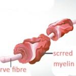 multiple-sclerosis-ico