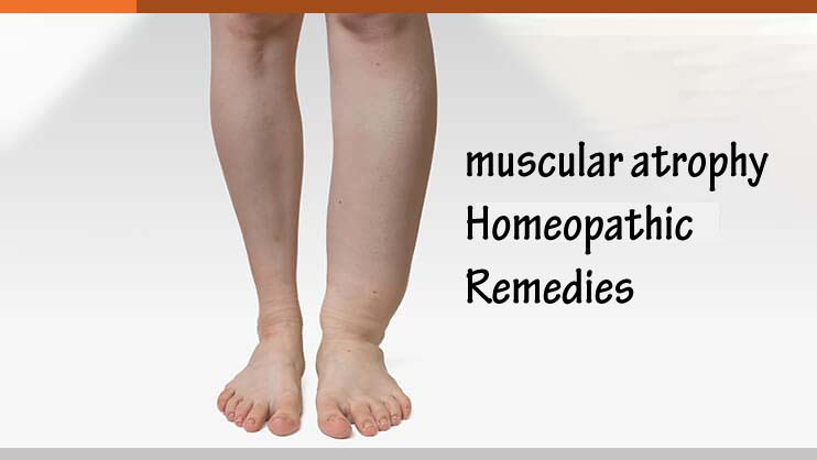Know About Muscular Atrophy And Its Homeopathic Remedies