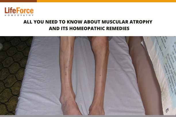 All You Need To Know About Muscular Atrophy And Its Homeopathic Remedies