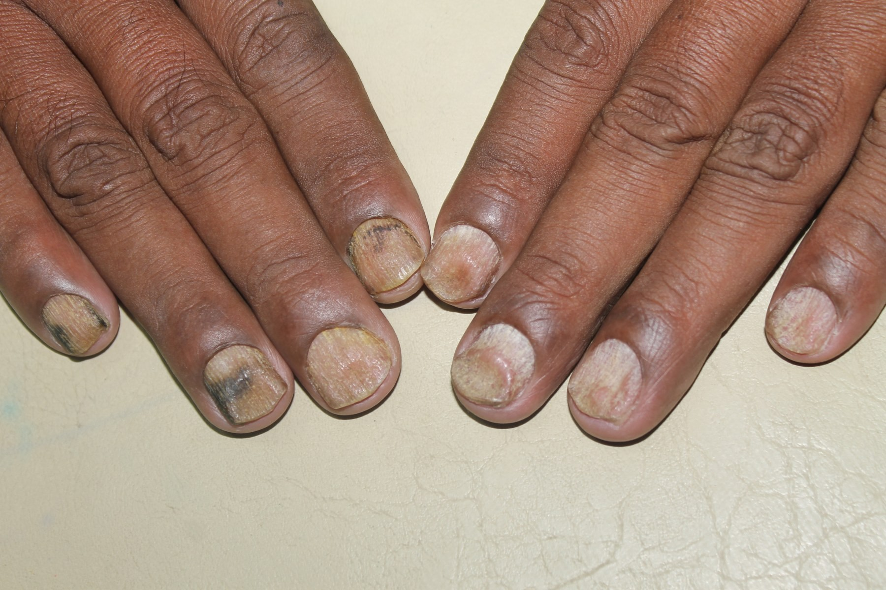 Psoriasis Nails Homeopathy