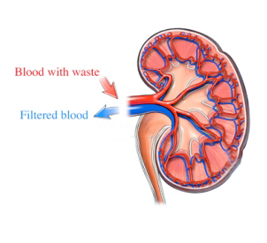 nephrotic-syndrome-ico-treatment