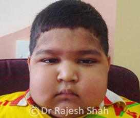 What-is-Nephrotic syndrome