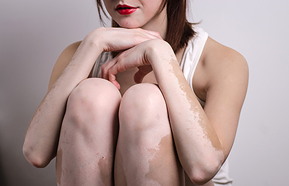 Homeopathic Medicines For Vitiligo Treatment Works Wonders Without Any Side-Effects