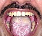 Managing painfulness in Oral Lichen Planus