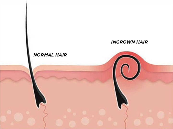 Ingrown Hair – Know How To Deal With It