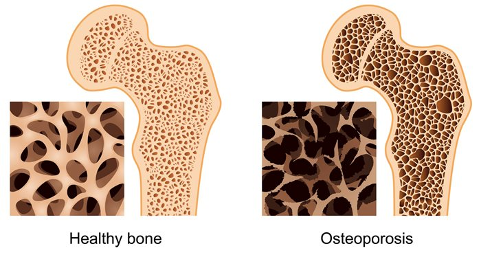 Manage Osteoporosis Effectively With Homeopathy