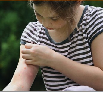 Tired of Eczema? Homeopathic Treatment Will Help You to Cure it