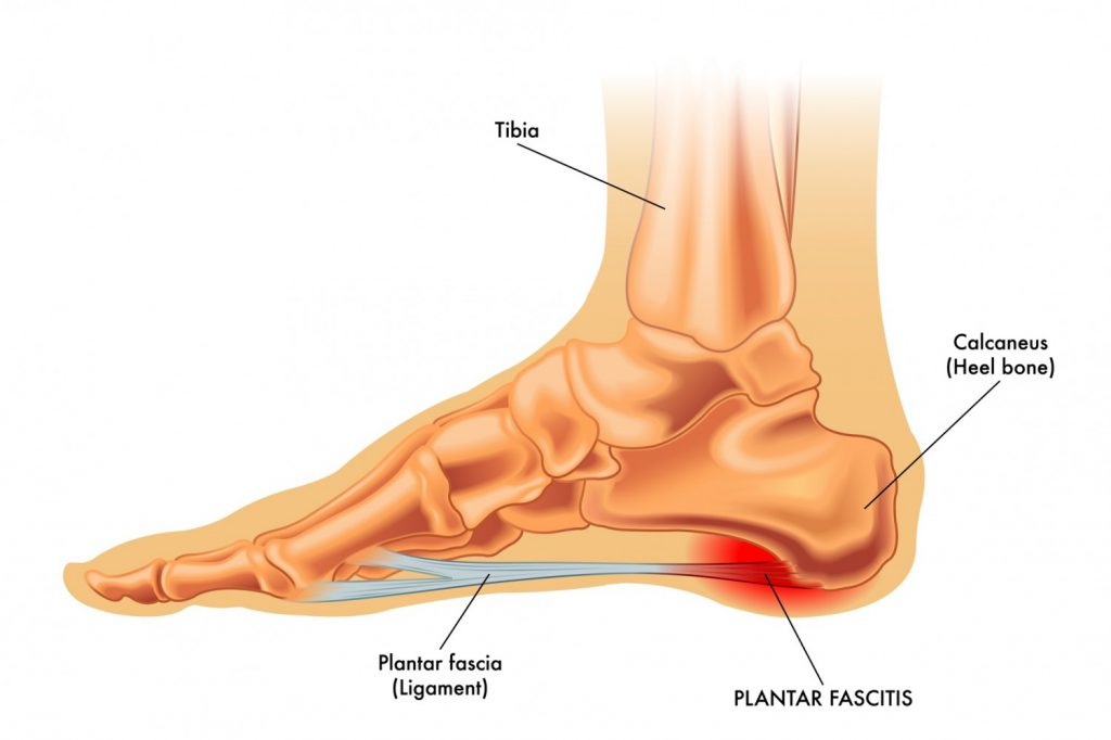 Ease Plantar Fasciitis Pain With Homeopathy