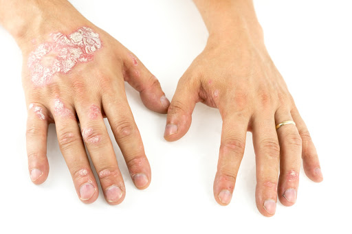 What are the triggers of psoriasis and how to manage it