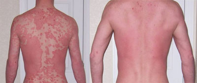 Homeopathy Treatment For Psoriasis Offers A Long-Term Relief