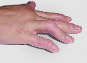 psoriatic_arthritis