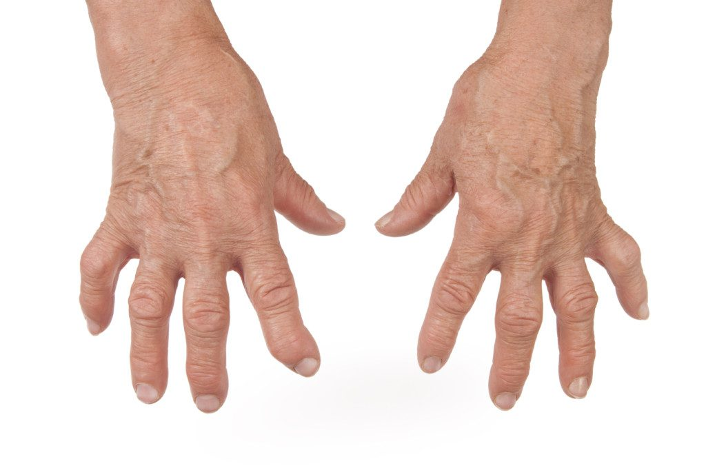 Arthritis exists in different types and has different causes