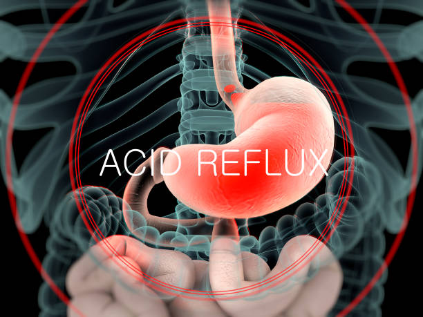 Can Children Suffer From Acid Reflux?