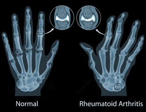 Homeopathic Treatment for Rheumatoid Arthritis