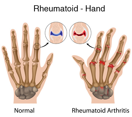 Is Rheumatoid Arthritis A Diagnosis For Pain In My Finger & Wrist Joints?