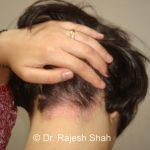 scalp_psoriasis_drshah