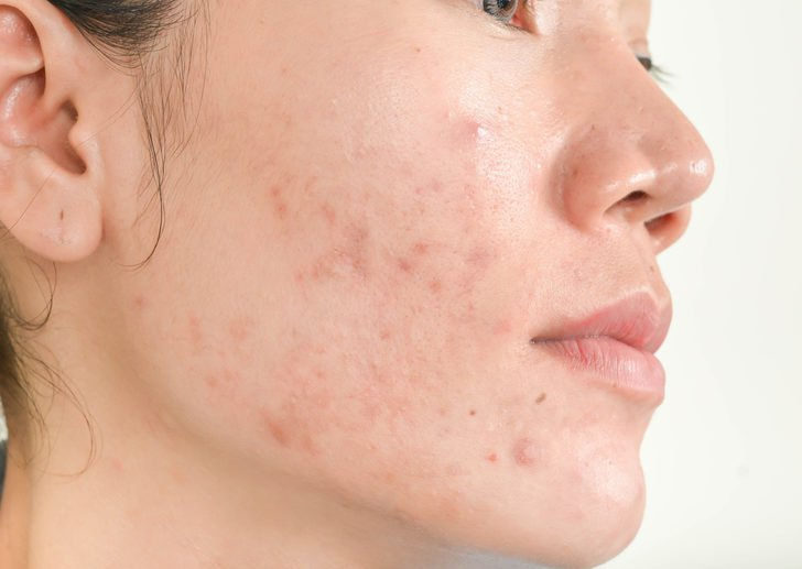 12 Helpful Tips To Deal With Winter Acne