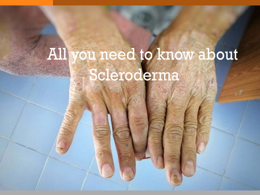 All you need to know about Scleroderma !!!