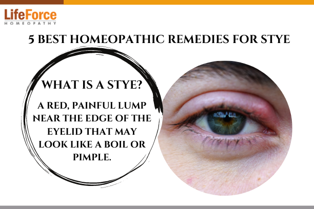 5 Best Homeopathic Remedies For Stye