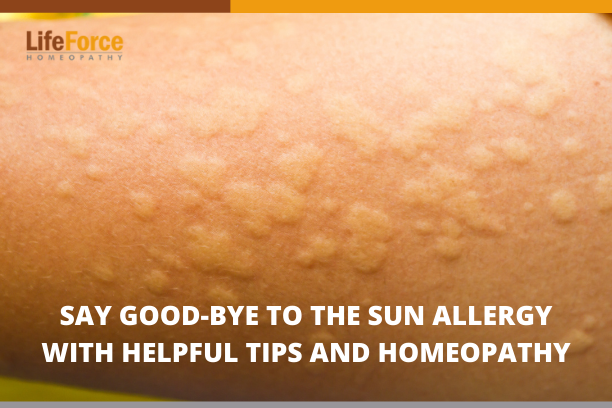 Say Good-Bye To The Sun Allergy With Helpful Tips And Homeopathy