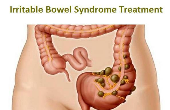 Management of Irritable bowel syndrome